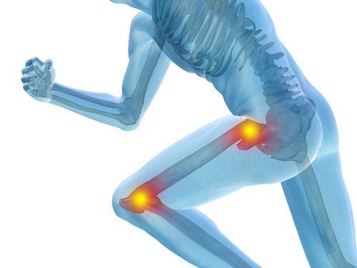 suplementos-artritis cuerpo-y-mente mx